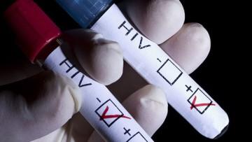 Realizarán testeos gratuitos de VIH para estudiantes